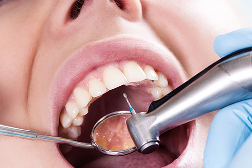 Where can I find an oral surgeon in Coral Springs?