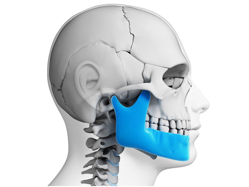 Who can help me with my tmj in Coral Springs?