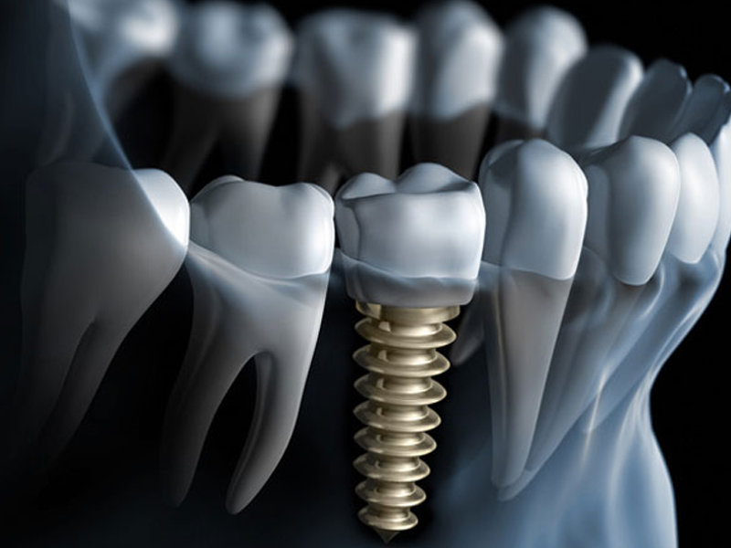 Who offers dental implants in Miami Beach?