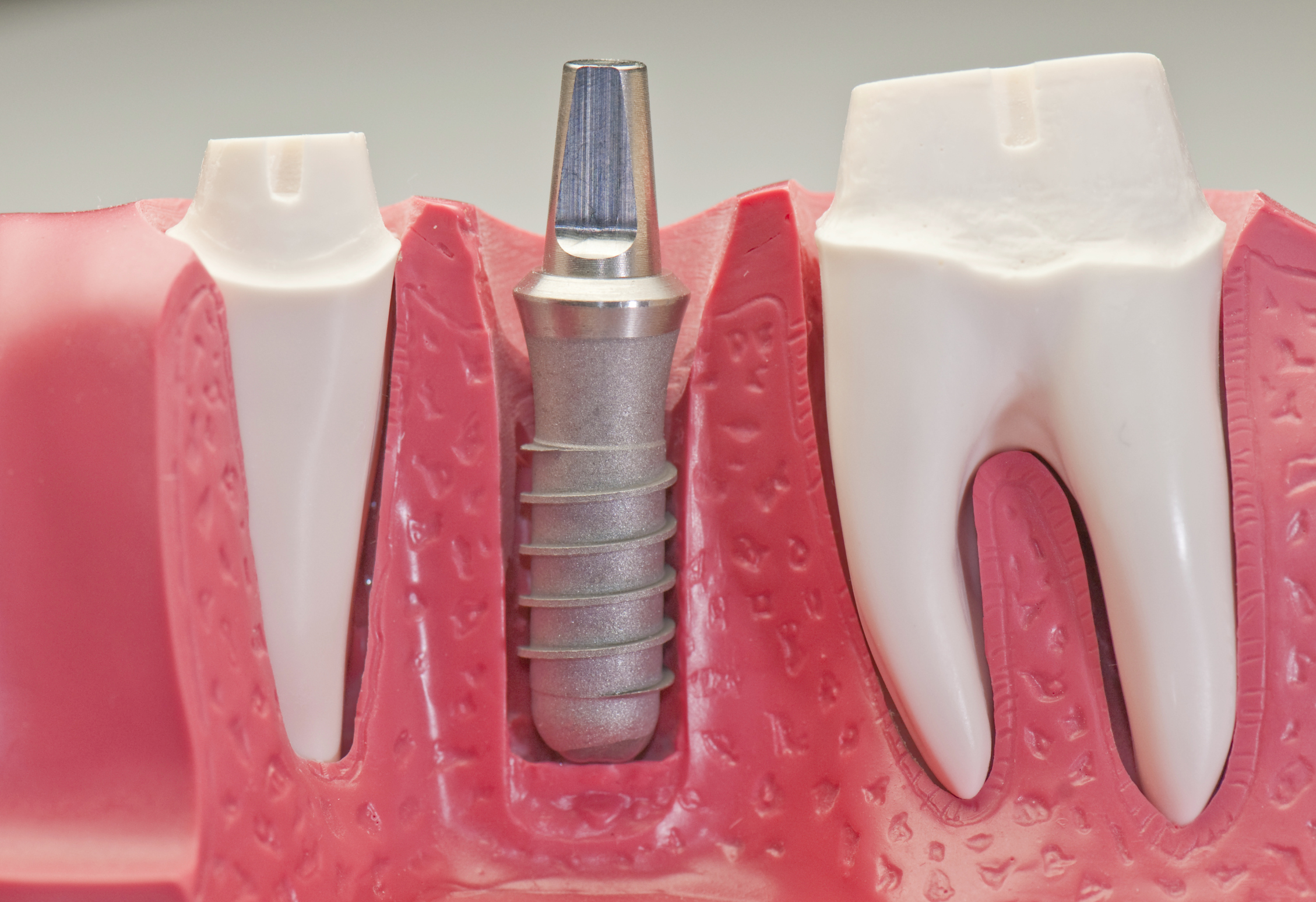 Where can I get dental implants in Pembroke Pines?