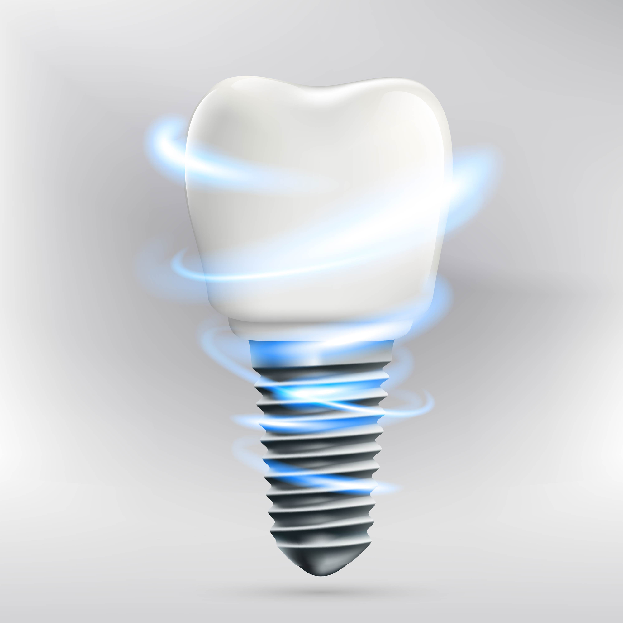 should i get dental implants in plantation?