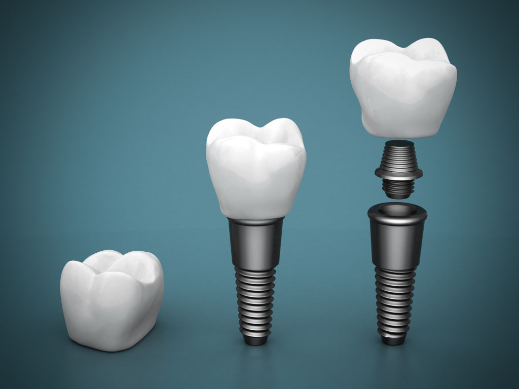 what is the procedure for dental implants in Coral Springs?