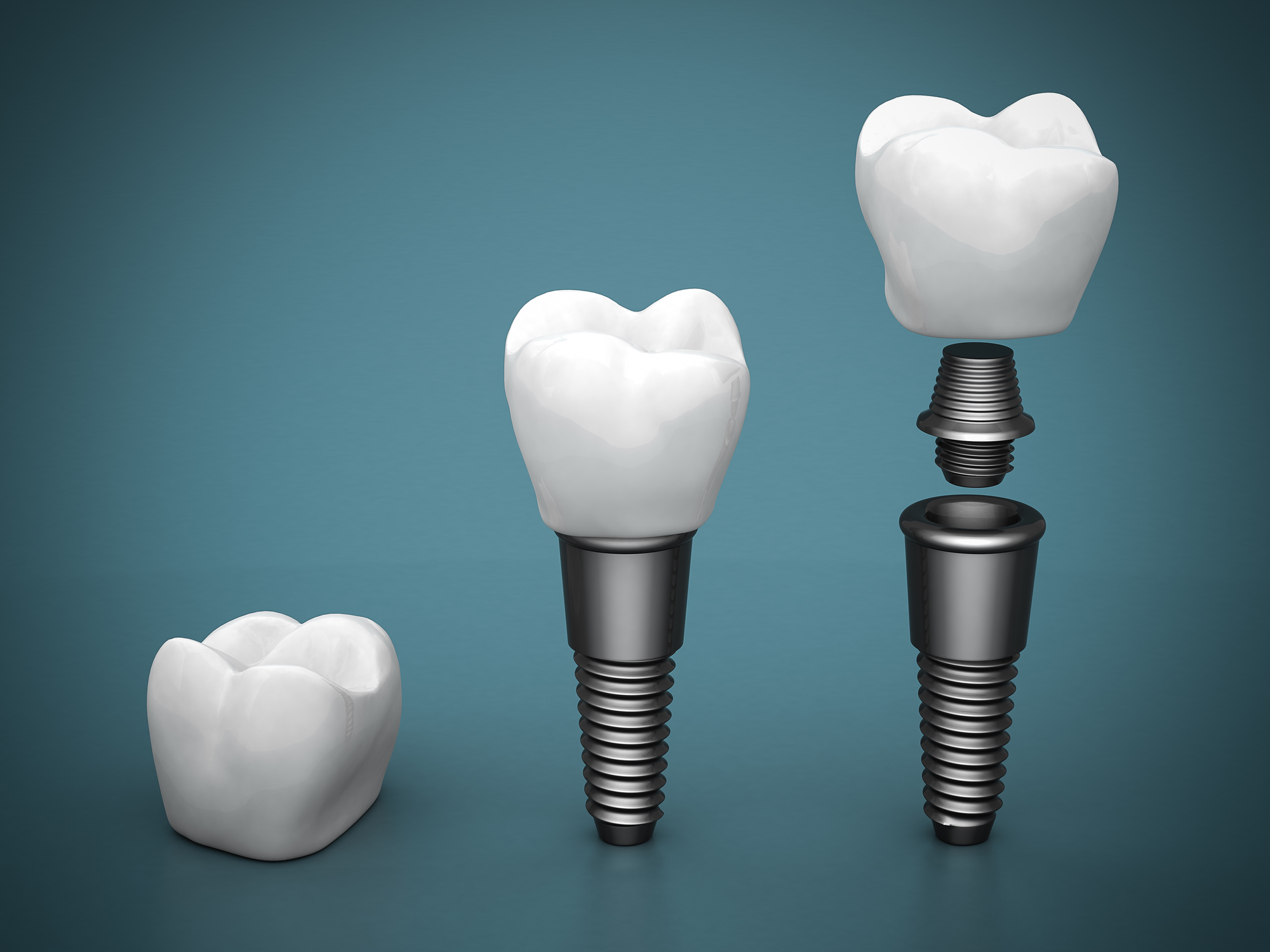 what is the procedure for dental implants in plantation?