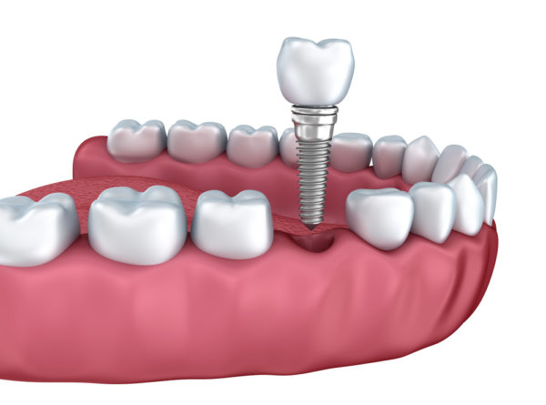 Where do I get dental implants in Miami beach?