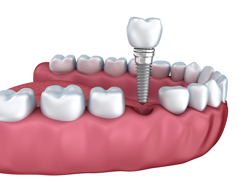 Where do I get dental implants in Coral Springs?