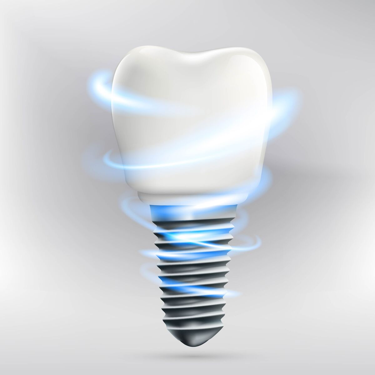 What are the best dental implants in Coral Springs?