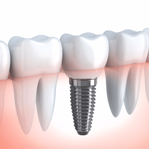 Do I need dental implants in Pembroke Pines?