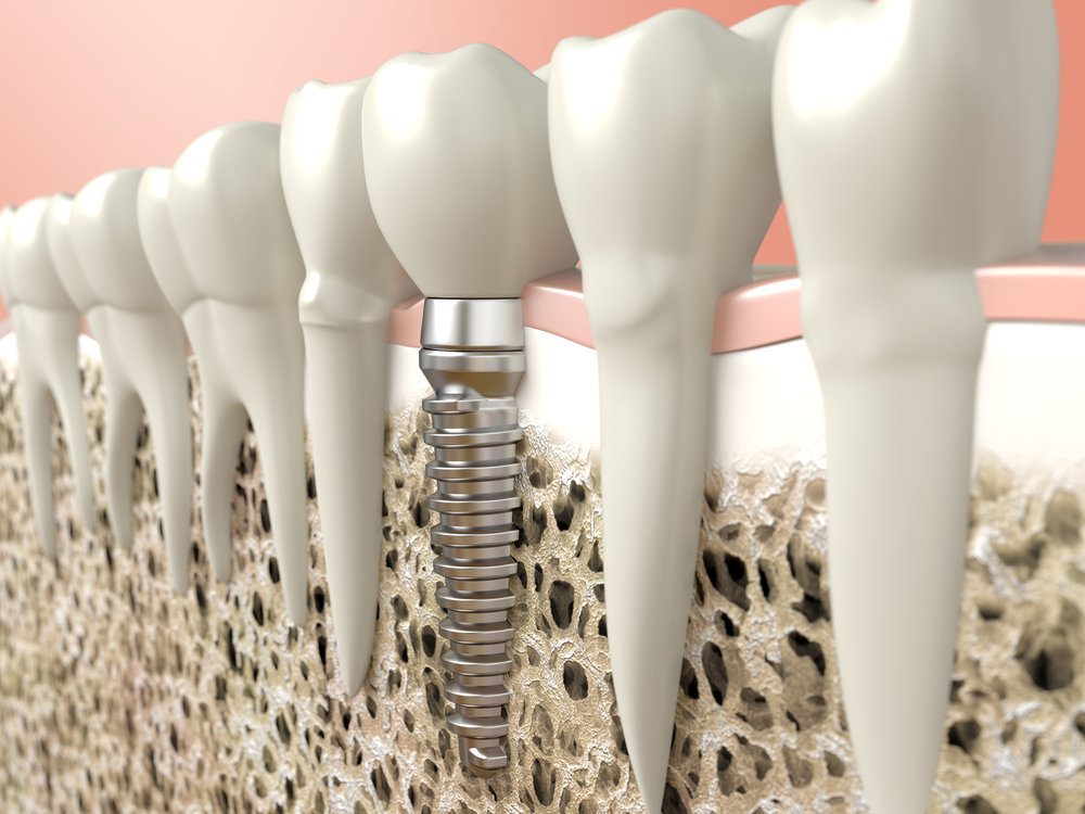 Where can I find dental implants in Pembroke Pines?