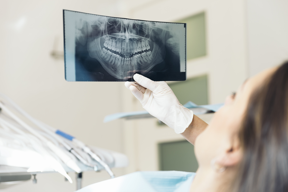Who has the best dental implants in Aventura?