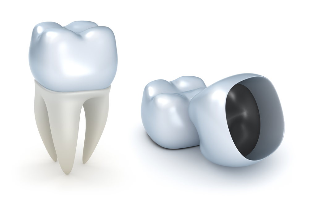 What are dental implants in Coral Springs?