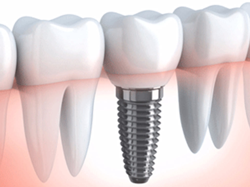 Where can I find dental implants in Miami Beach?