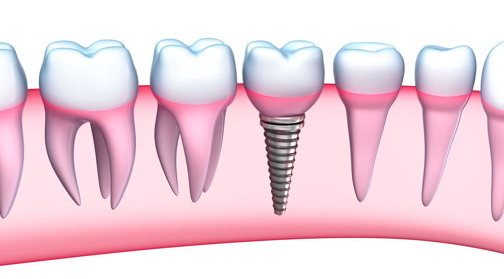 Who has dental implants in plantation?