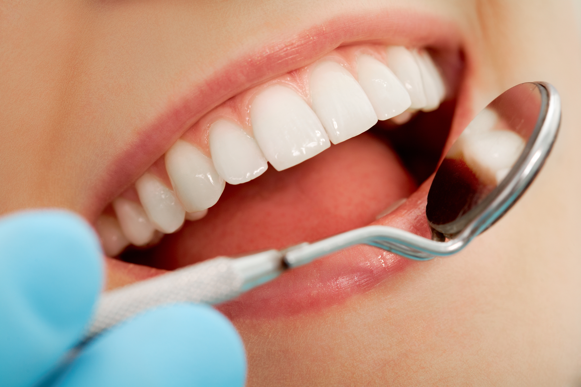 Where can I get dental implants in Aventura?