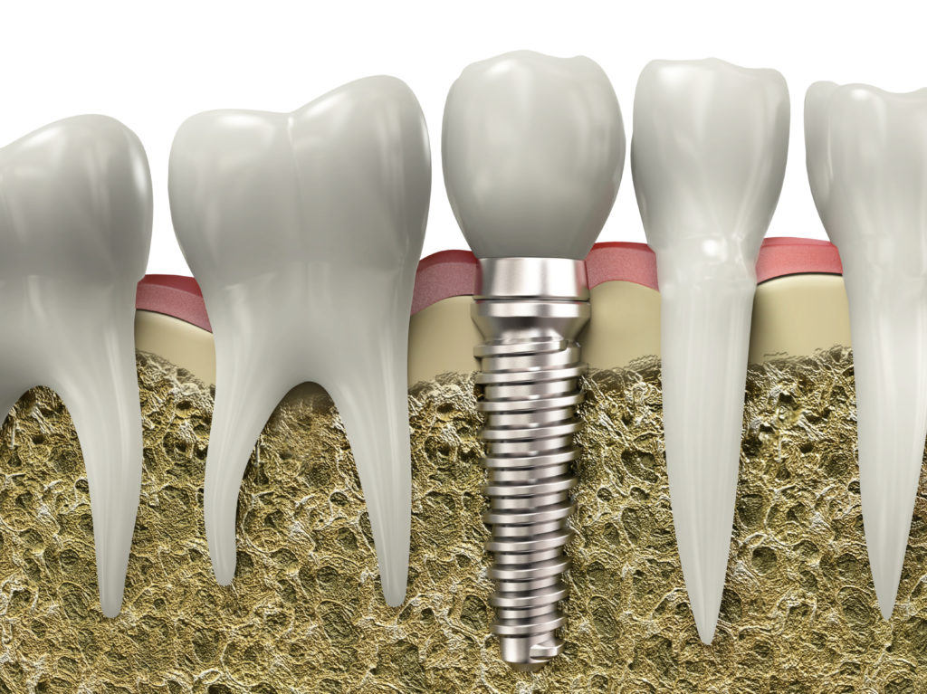 Where are good dental implants Coral Springs?