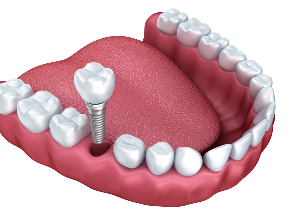 Where are the best dental implants plantation?