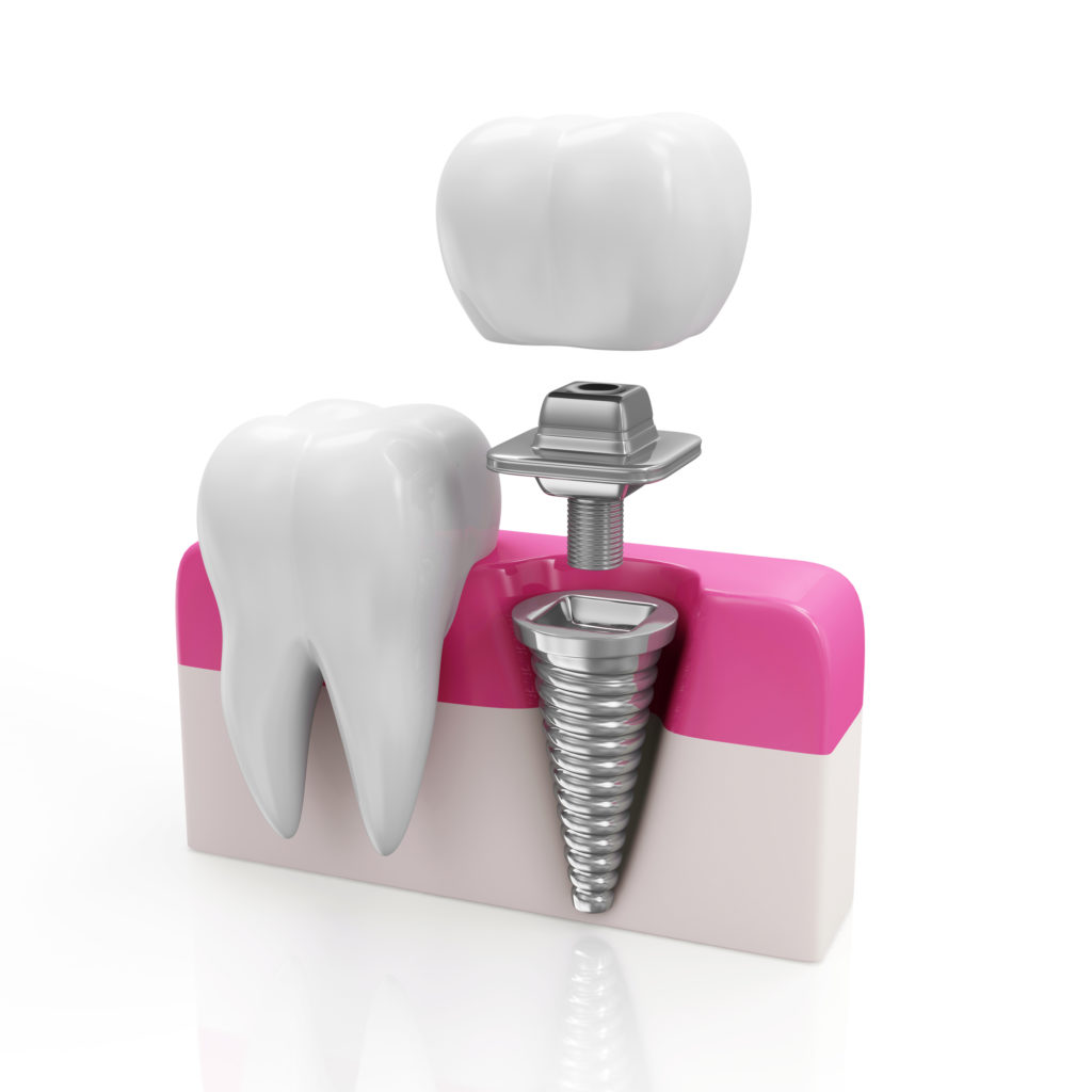 where can i find the best dental implants in aventura?