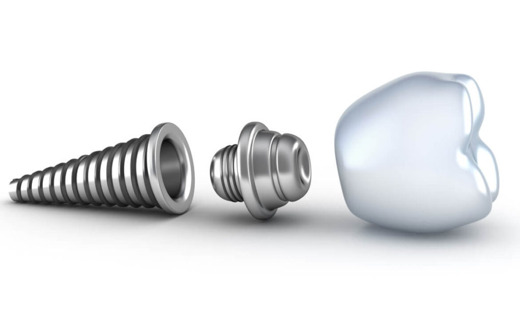 who offers the best pembroke pines dental implants?
