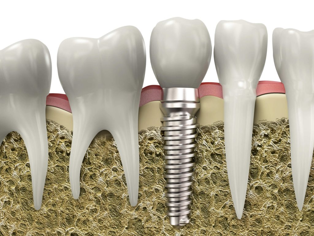 where are the best dental implants coral springs?