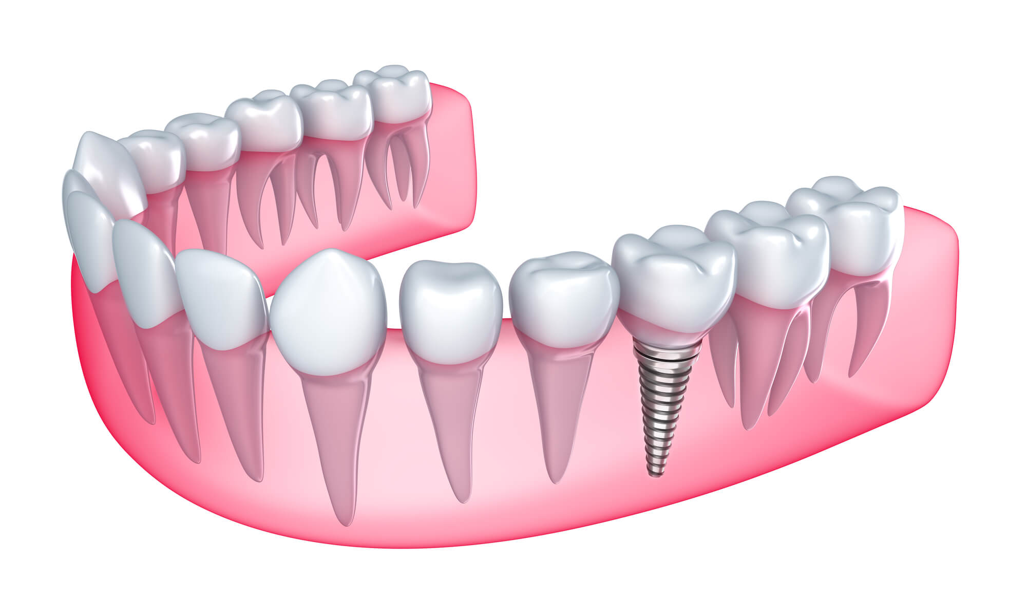 where is the best dental implants plantation?