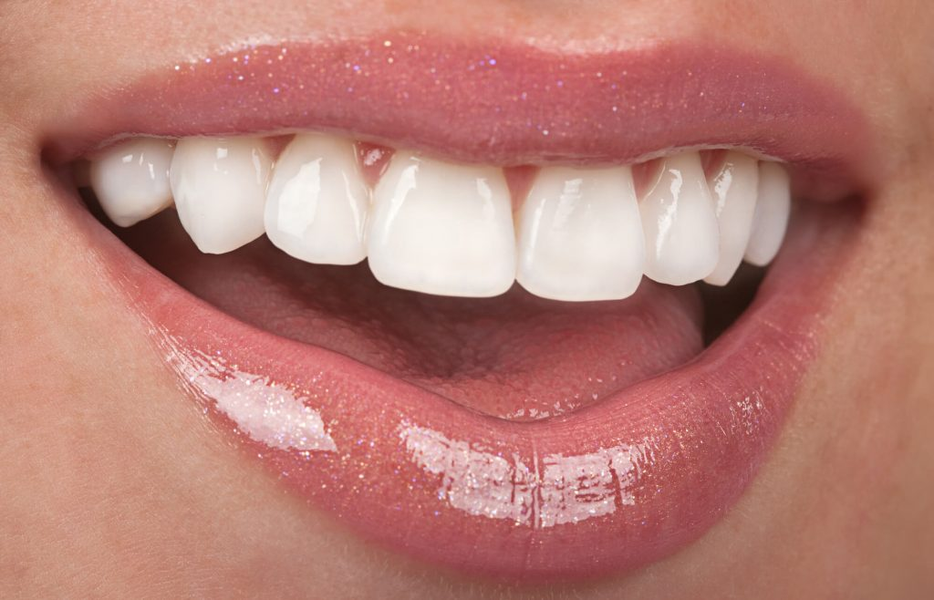 where is the best teeth in a day coral springs?
