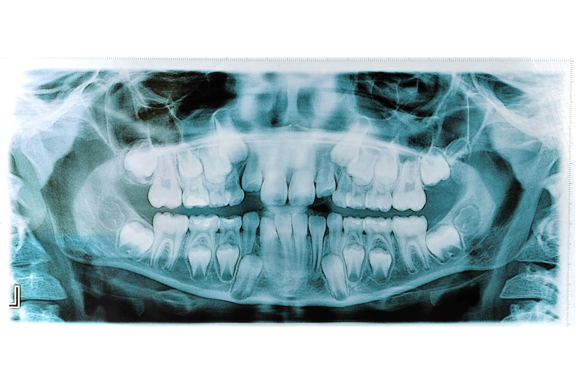 Where can I get Oral Surgery Plantation?