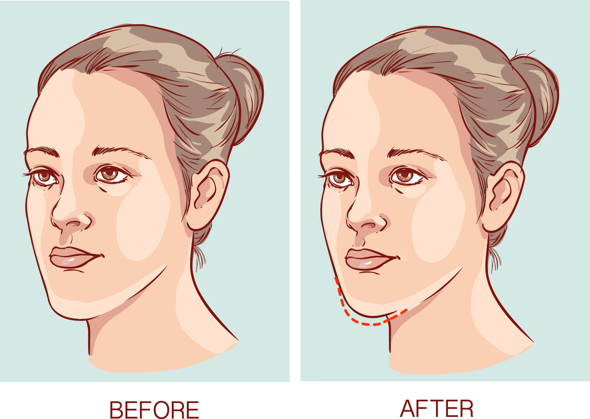 Where can I have Orthognathic Surgery Coral Springs?