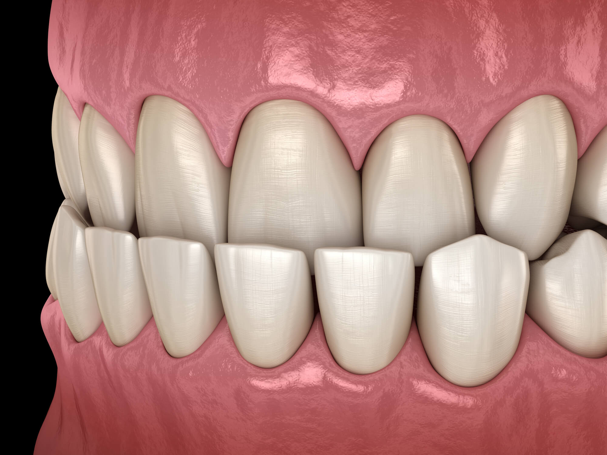 Where to get Orthognathic Surgery Plantation?