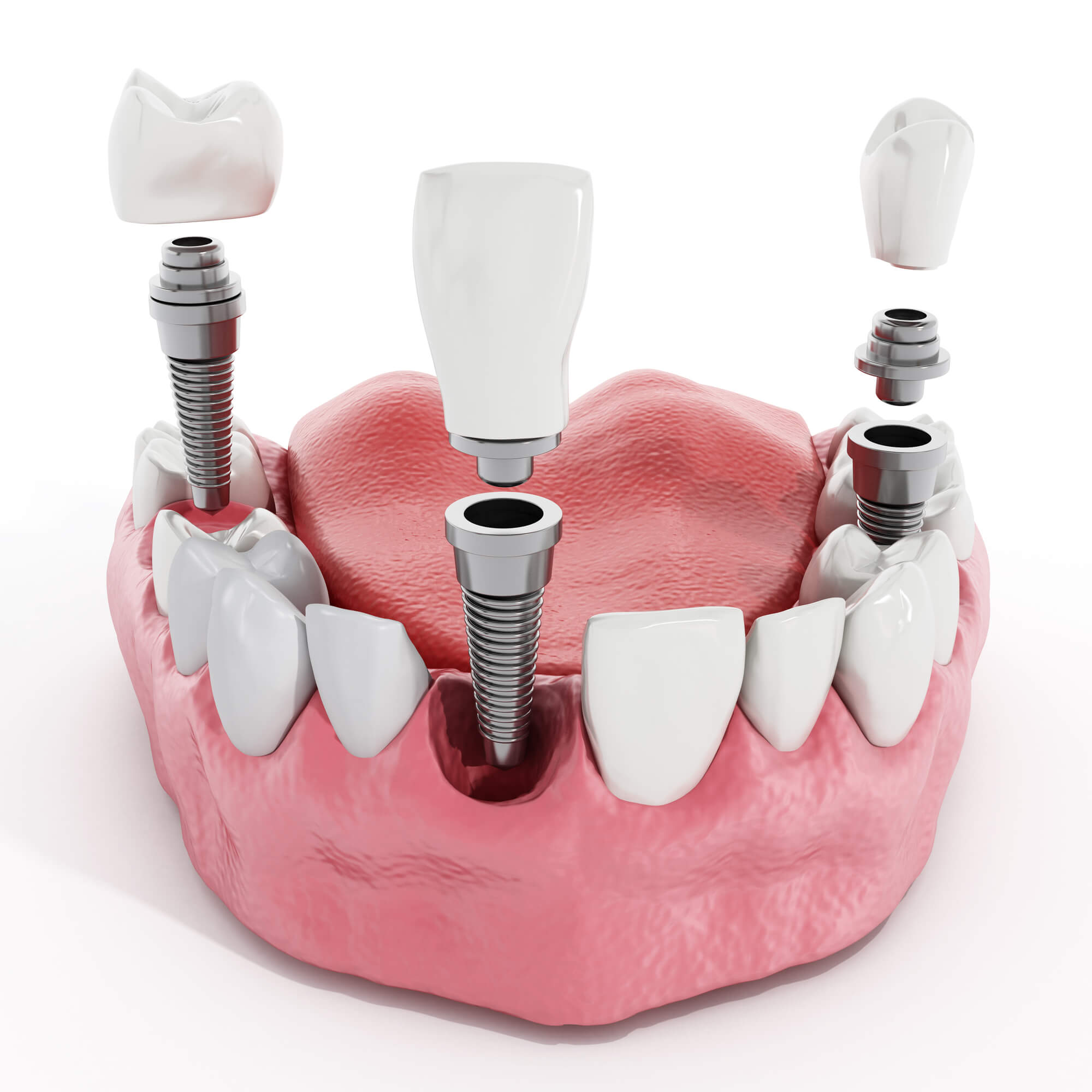 Where to get Dental implants coral springs?