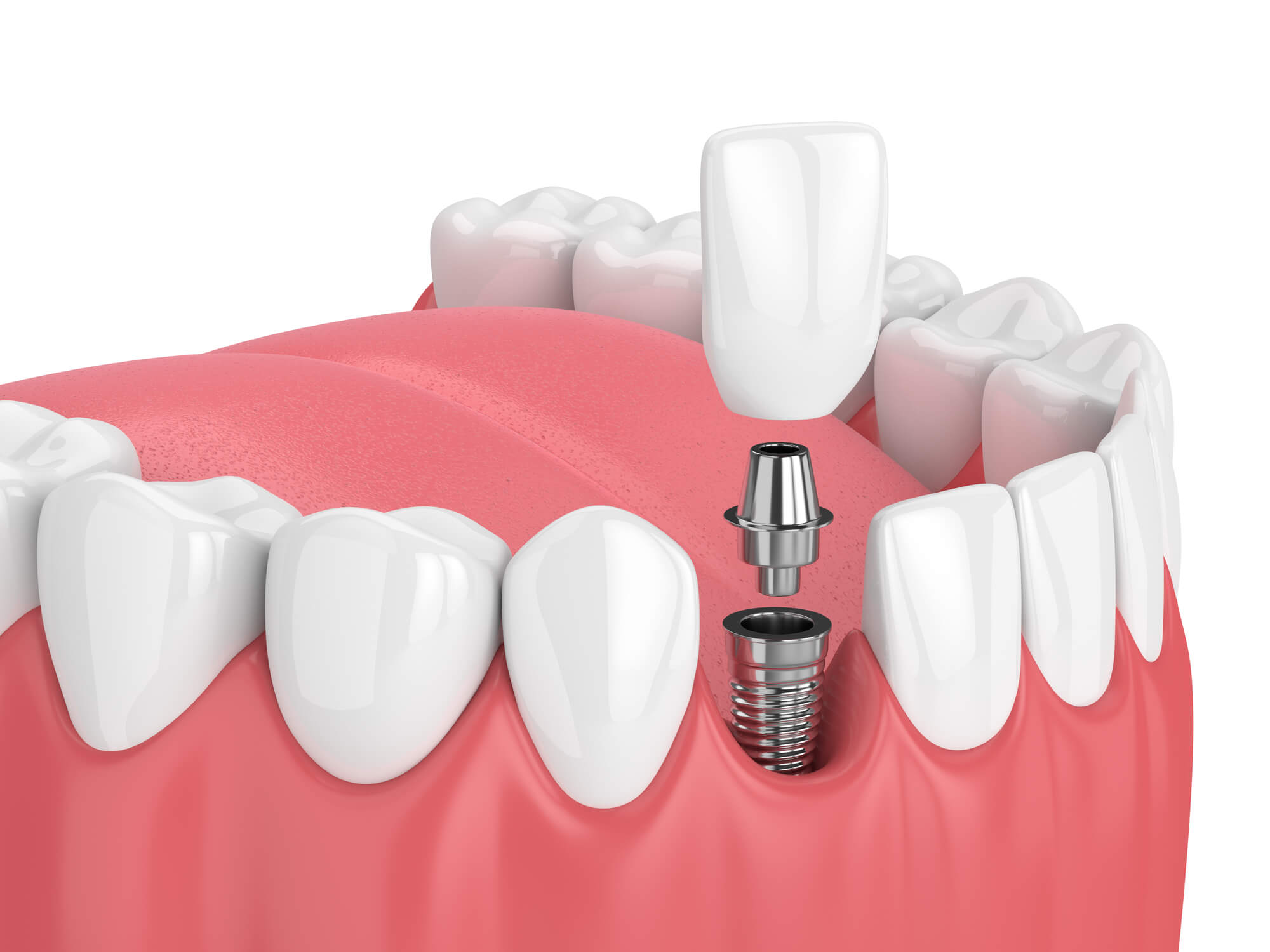 Where can I get Dental implants aventura fl?
