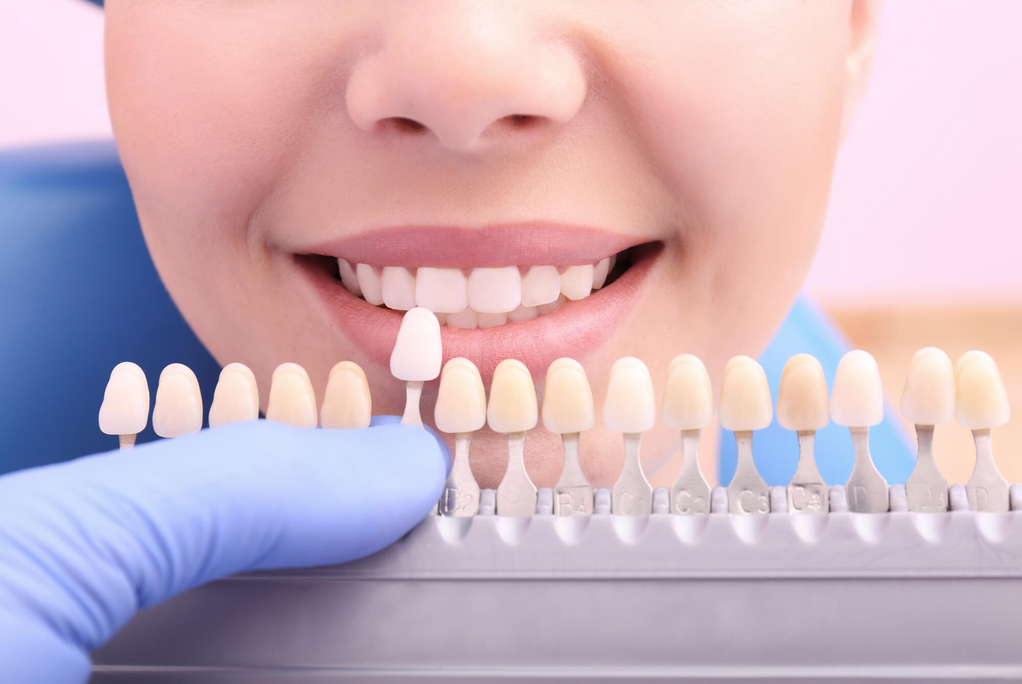 where to get best dental implants plantation