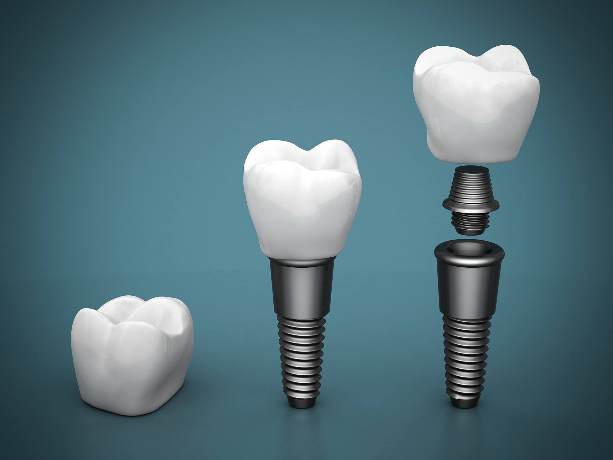 Best dentists for dental implants in Pembroke Pines