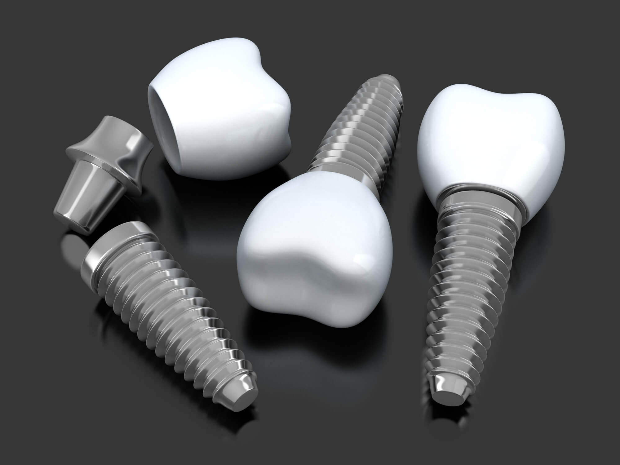 Where can I get Dental Implants Aventura?