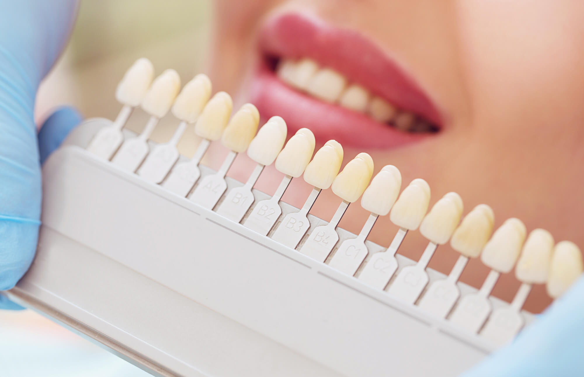Set and shade of implants for Teeth in a day coral springs