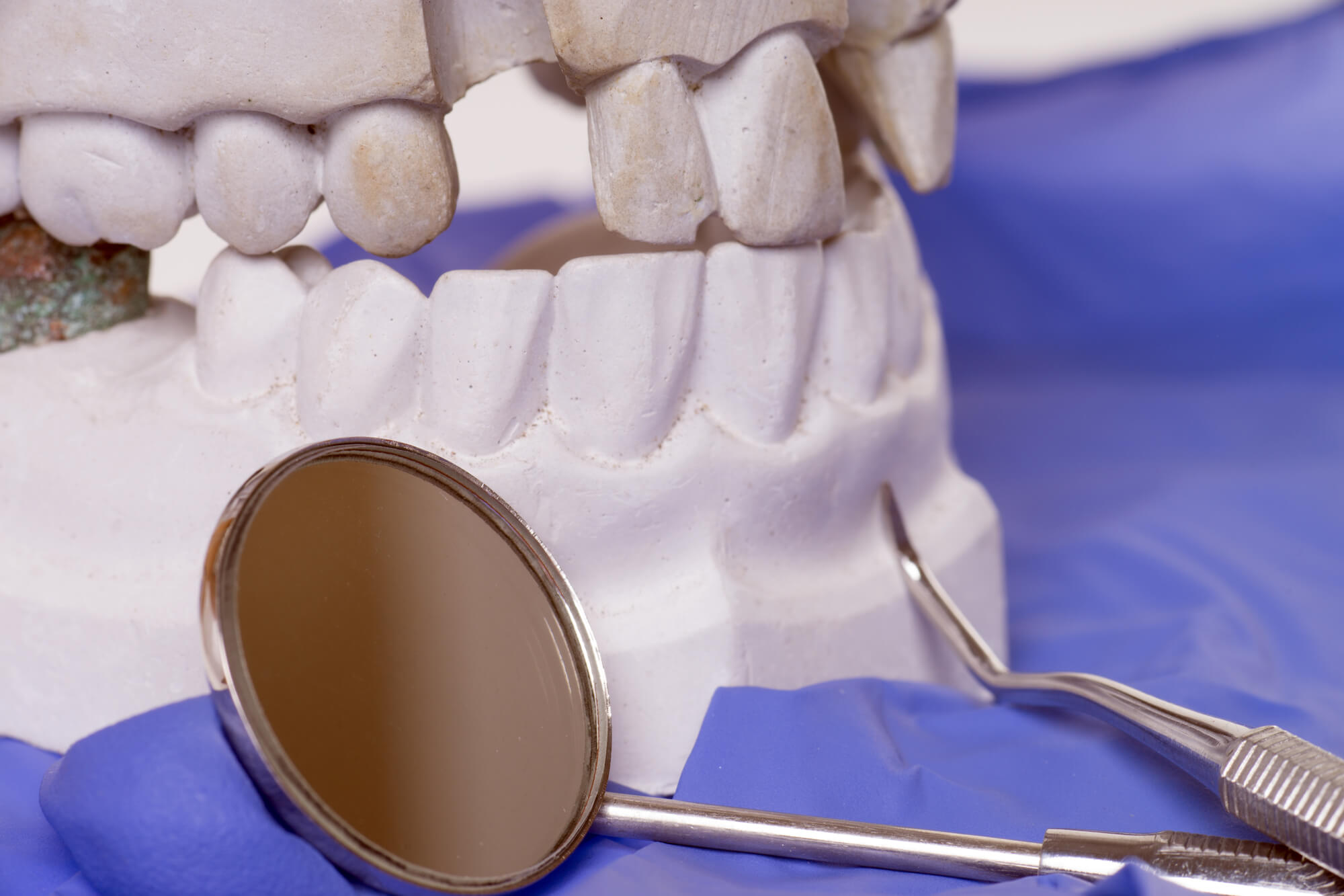 missing teeth plaster for Teeth in a day Plantation