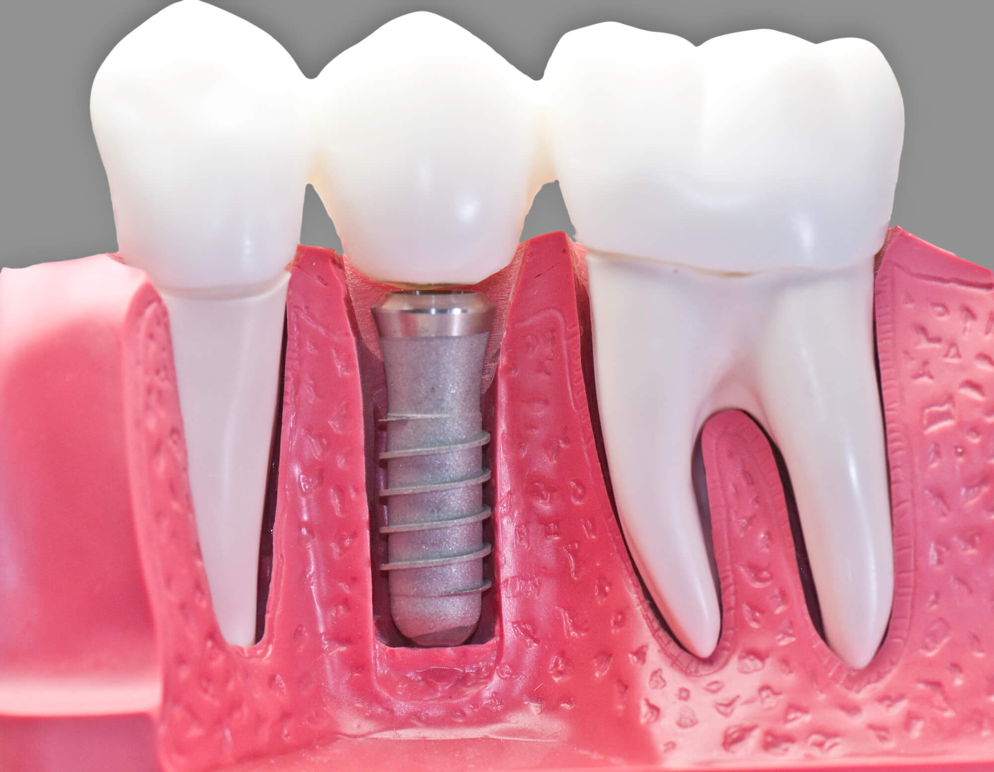 a picture of dental implants in Aventura