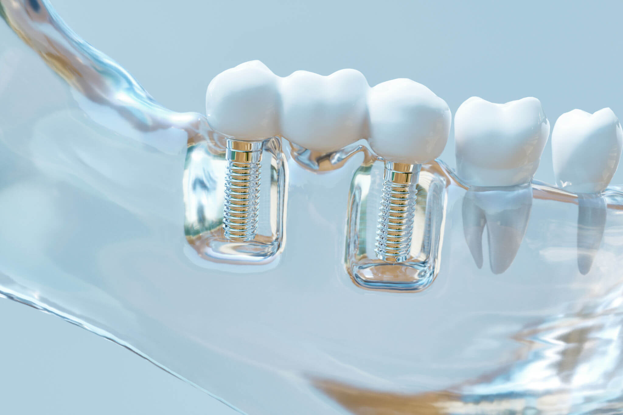 Tooth human implant model Oral surgery in Coral Springs fl